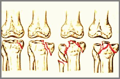 Сломы нижних мыщелков колена S82.1