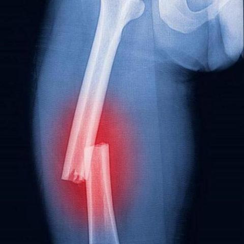 Смещение фрагментов кости как причина вынужденной формы ноги