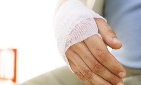 Способы диагностики и лечения сломанной ладьевидной кости запястья