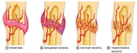 Сращивание костей происходит в несколько этапов.