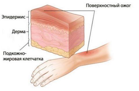 Степени повреждения кожи при ожоге