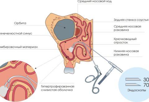 Техника проведения эндоскопической операции