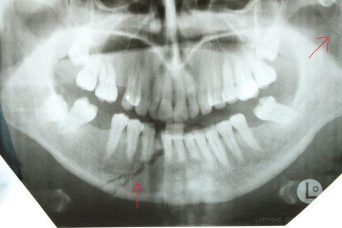 Терапия нижней челюсти