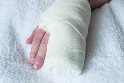 Срастание кости после перелома пальца thumbnail