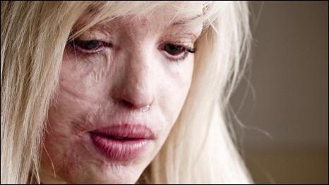 Трансплантация кожи позволяет скрыть видимые рубцы на лице и теле.
