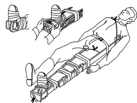 Транспортировка пострадавшего бригадой скорой помощи.