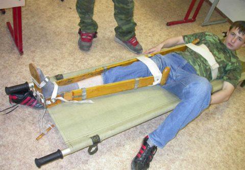 Транспортировка пострадавшего на носилках с использование иммобилизационной шины. Обувь с пациента спала во время происшествия, и помощь оказывалась поверх голой стопы.