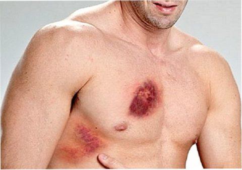 Травмы ребер и грудины