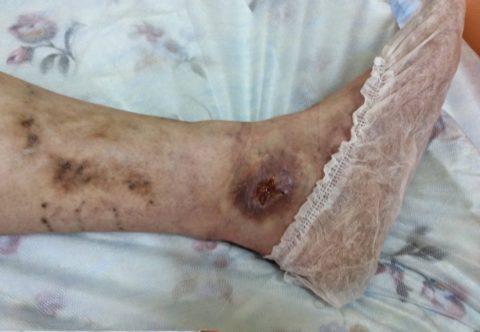 Трофические язвы на ногах при диабете.