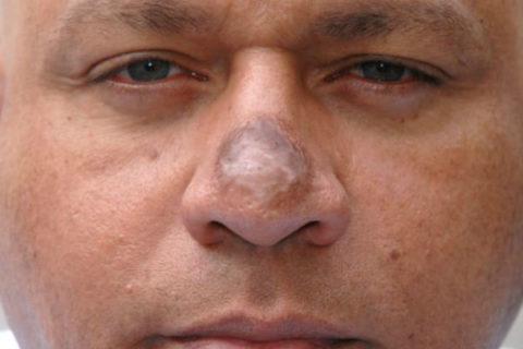 Твердое уплотнение после обморожения носа