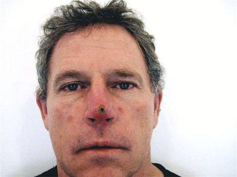 Уплотнение на кончике носа