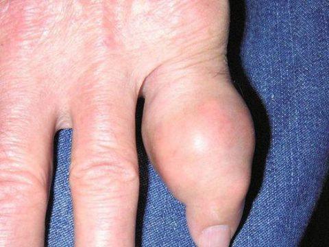 Утолщение пальца