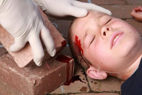 В основном после падения возникает ушиб мягких тканей с нарушением целостности кожного и волосяного покрова.