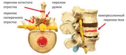 Виды переломов отростков и тела позвонка