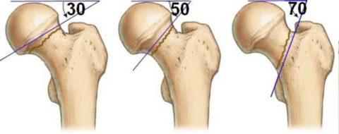 Виды переломов шейки бедра. Представлены в виде угла под градусом.