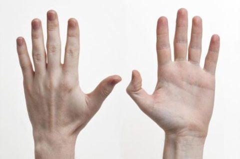 Визуальные признаки нарушенной целостности кости фаланги пальца на руке