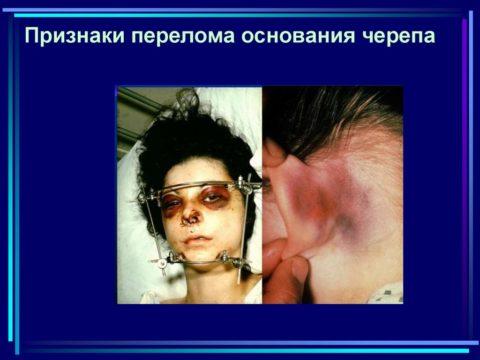 Внешний вид пациента с характерной для данной фрактуры симптоматикой.