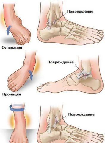 Возможные травмы голеностопного сустава.