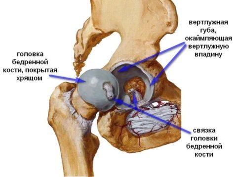 Выход головки бедра из впадины тазовой кости