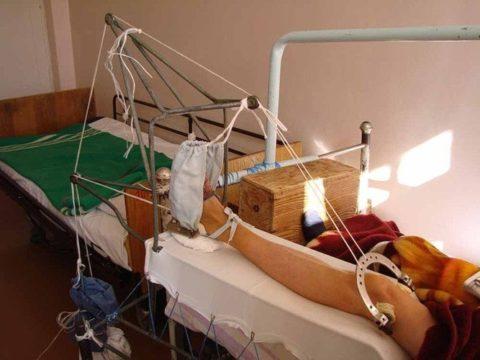 Вытяжение костей в условиях стационара.