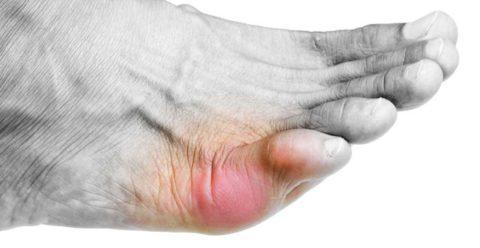 Заболевания костной ткани 5 пальца стопы приводят к механическим повреждениям.