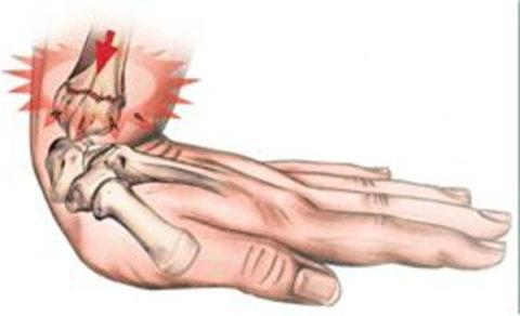 Давление в качестве причины травмы верхней конечности