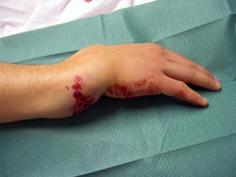 Фото: характерные особенности нарушенной целостности кисти руки
