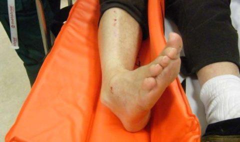Фото: механизм повреждения части нижней конечности в закрытой форме
