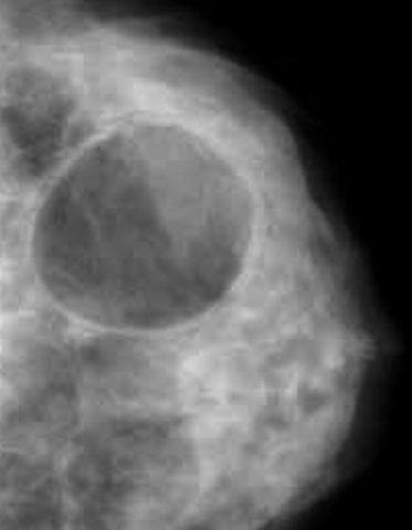 Киста грудной железы представляет собой полость, заполненную жидкостью.