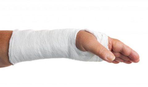 Классификация видов травмы верхней конечности в зависимости от линии излома