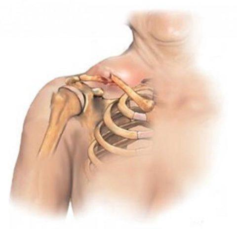Локализация перелома кости ключицы