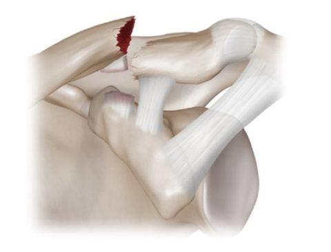 Нарушение целостности ключицы с сопутствующим повреждением нервов, мышц и сосудов