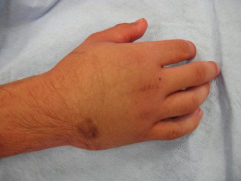 Образование кровоизлияния под кожей из-за перелома кости на руке