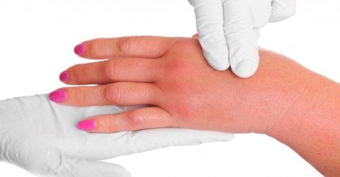 Образование видимых отеков на руке вследствие перелома