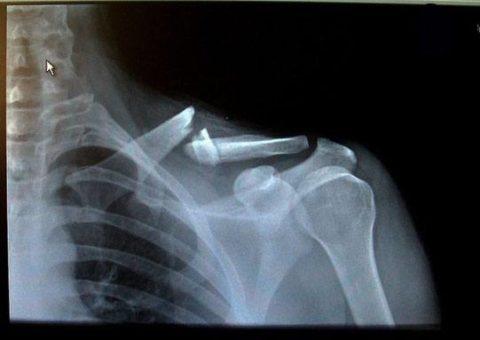 Обязательная рентгенография для определения и подтверждения диагноза перелома ключицы