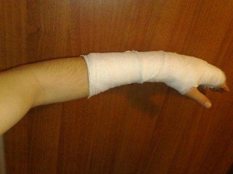 Основные симптоматические признаки, позволяющие определить перелом верхней конечности