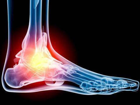 Постоянно усиливающийся болевой синдром как симптом сломанной кости на ноге