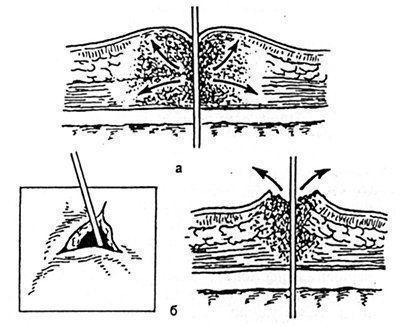 Рассечение краев отверстия в коже в зоне спицы при декомпрессии очага воспаления