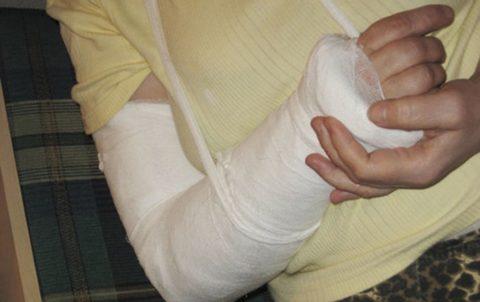 Рекомендации для определения перелома верхней конечности и первой медицинской помощи