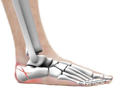 Симптоматические особенности при закрытых формах травмированной кости ноги