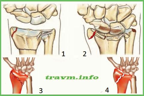 Сломы шиловидного отростка луча: компрессионный (1, 3), отрывной (2, 4)
