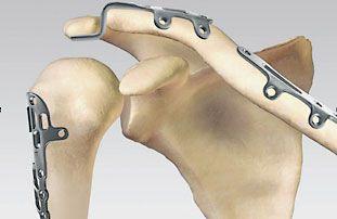 Вид необходимого импланта из титана зависит от места установки и цели использования.