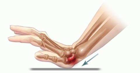 Визуальные симптоматические признаки нарушенной целостности руки