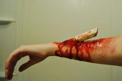 Визуальные симптоматические проявления поврежденной кисти руки открытого вида