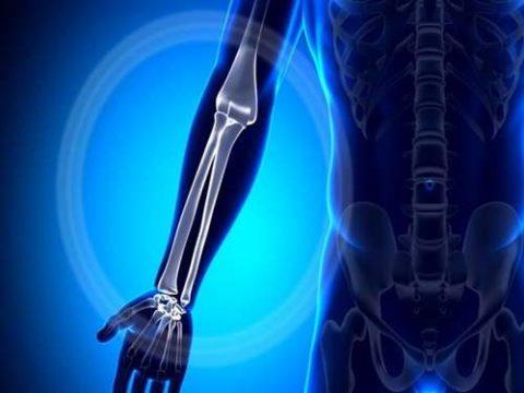 Возможные расположения повреждений в косте верхней конечности