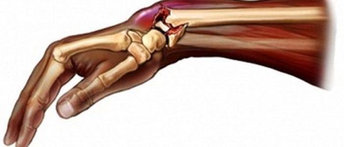 Перелом головки локтевой кости без смещения