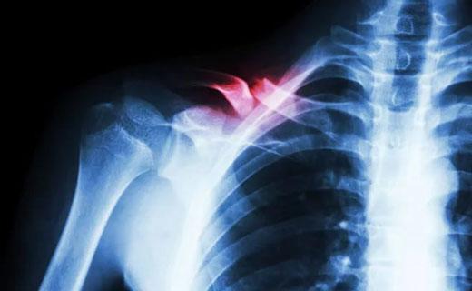 Особенности образование костных наростов при повреждения ключицы