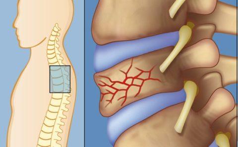 Эта травма встречается реже, чем повреждение других отделов позвоночника