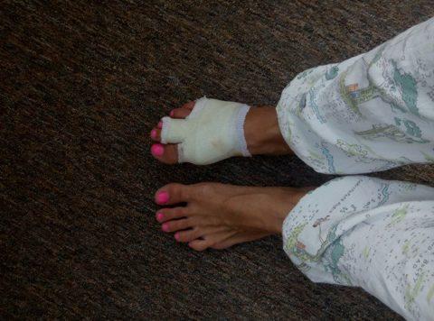Фиксация сломанного пальца на стопе