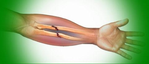 Фото: характерные особенности нарушения целостности костных тканей в организме